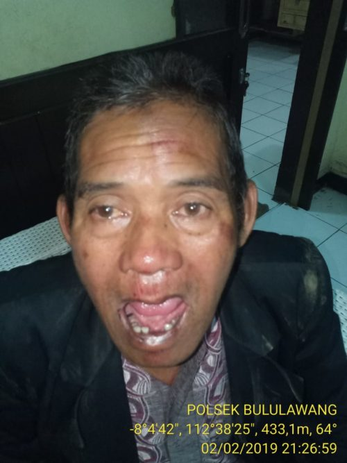 PROTOL : Korban giginya rompal. (foto Humas Polres Malang)