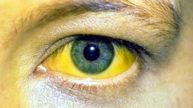 Mata kuning, ciri khas penderita Hepatitis A. (ist)