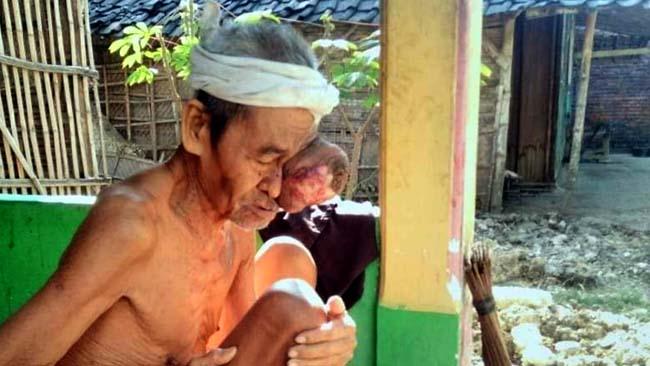 Dinkes dan Baznas Lamongan Serius Tangani Mbah Munawi